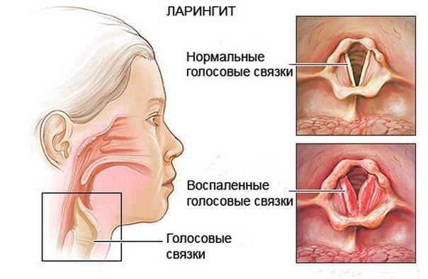 Стенозирующий ларингит: причины, симптомы и лечение, неотложная помощь