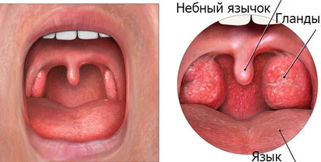 Воспаление язычка в горле: симптомы, причины и лечение в домашних условиях