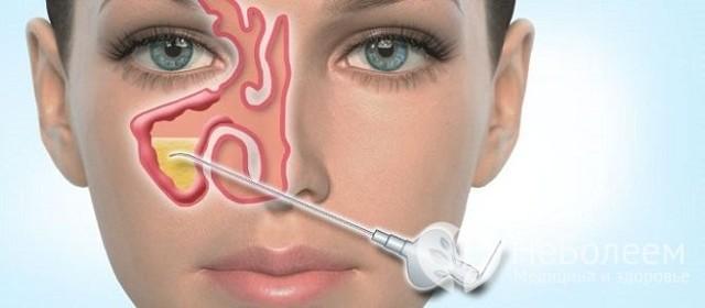 Хронический гайморит (синусит): симптомы и лечение у взрослых навсегда