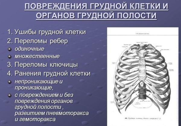 Болят ребра при кашле: причины, симптомы, методы диагностики и способы лечения