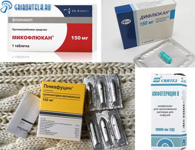 Грибковый фарингит: симптомы и лечение, способ передачи и возможные осложнения
