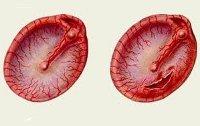 Аэроотит: причины, симптомы, лечение и профилактика