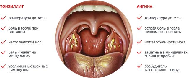 Ангина и тонзиллит: в чем разница и симптомы заболеваний, как отличить
