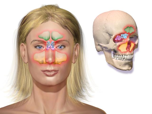 Как лечить гнойники в горле: неприятный запах и привкус из носоглотки