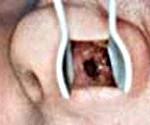 Перфорация носовой перегородки: симптомы и лечение с операцией и без
