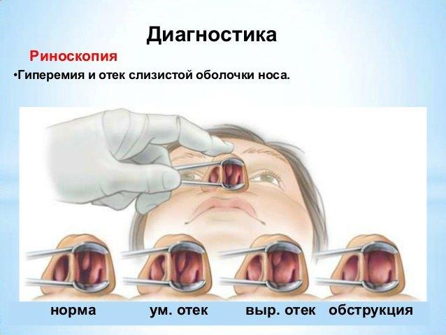 Чем снять отек в носу при насморке: лучшие способы