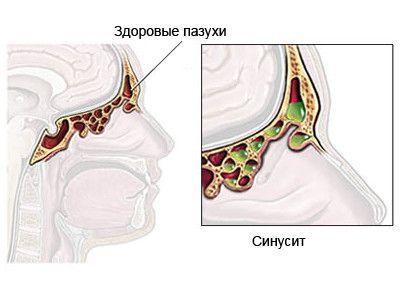 Можно ли греть нос при гайморите (синусите) в домашних условиях