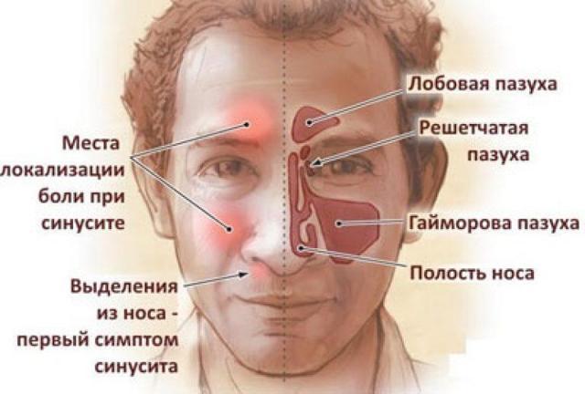 Полисинусит и его формы: симптомы и лечение у взрослых