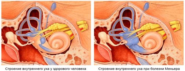 Болезнь Меньера: симптомы и лечение, диета и как отличить от ВСД