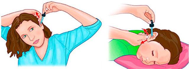 Отипакс: инструкция по применению ушных капель для детей и взрослых, аналоги
