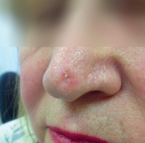 Образования на коже носа: причины, виды, лечение и профилактика