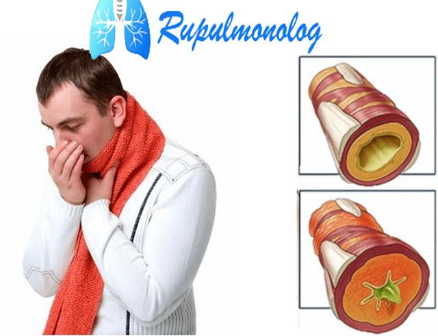 Желтая мокрота при кашле: причины образования, диагностика и методы лечения