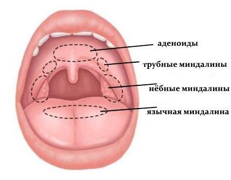 Киста на миндалине: причины, симптомы и лечение с операцией и без