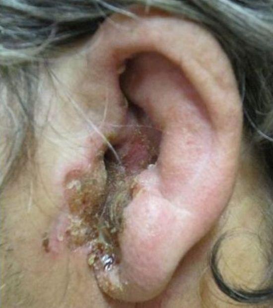 Болезни уха: причины, симптомы и лечение у человека