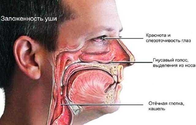 Сухой ринит (насморк): симптомы лечение у взрослых и детей