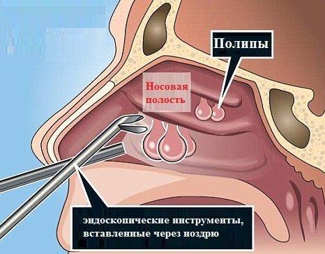 Удаление полипов в носу: эндоскопическая и лазерная операции