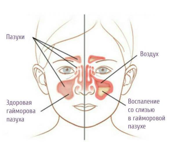 Сопли по задней стенке у ребенка: лечение постназального синдрома
