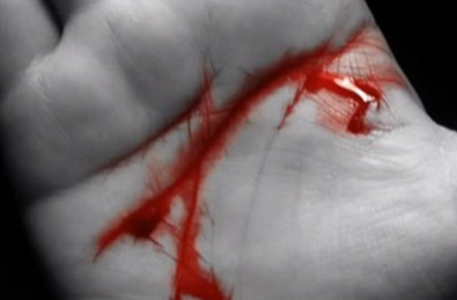 Кашель с кровью: причины, диагностика и методы лечения, профилактика