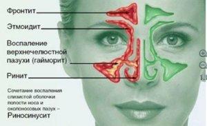 Отек слизистой носа без насморка: причины и лечение