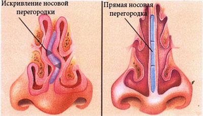 Операция от храпа: лазером и хирургическим путем по устранению