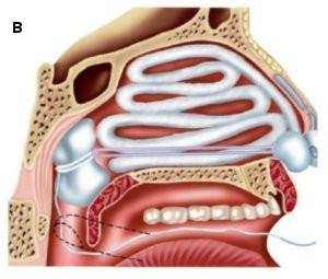 Тампонада носа при кровотечении: техника выполнения для остановки