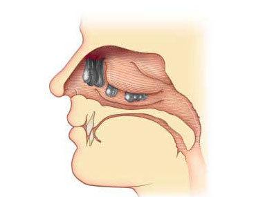 Полипы в носу: как выглядят, симптомы и лечение у взрослых