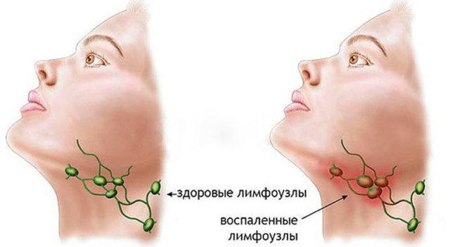 Воспаление лимфоузлов под челюстью: причины и лечение
