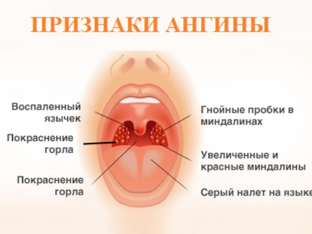Ангина фолликулярная и лакунарная: отличия двух форм, разница в лечении