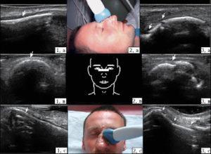 УЗИ пазух носа: что показывает процедура, методика проведения