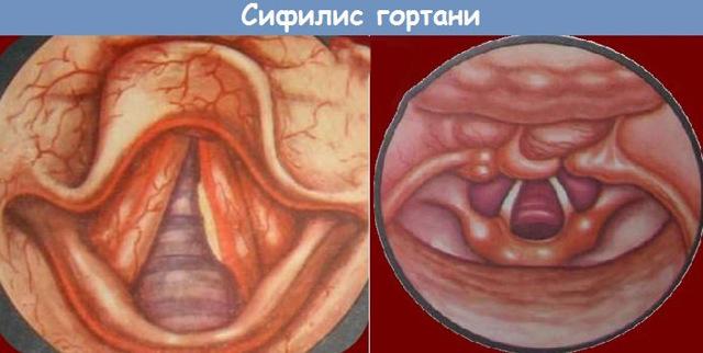 Сифилитическая ангина: симптомы и способы заражения, лечение и профилактика