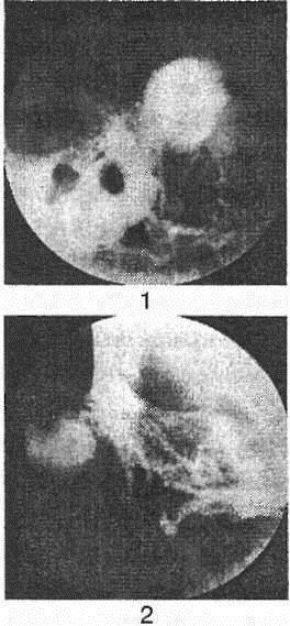 Гломусная опухоль среднего уха: причины, симптомы и лечение