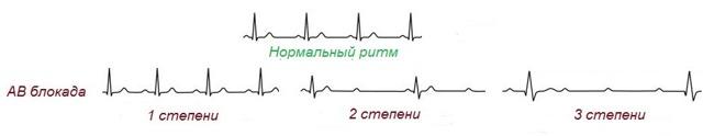 Атриовентрикулярная блокада 1, 2 степени и полная АВ-блокада