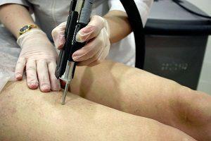 Сосудистые звездочки на ногах и теле: причины, лечение, виды (венозные)