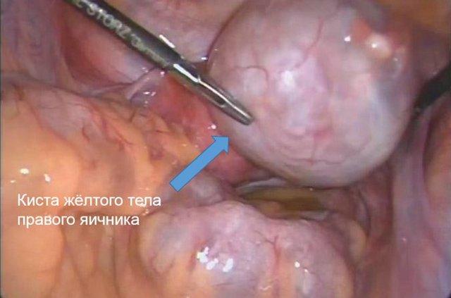 Киста желтого тела яичника: причины, диагностика, симптомы, лечение