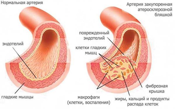 Брахиоцефальные сосуды (артерии) и их болезни: атеросклероз и другие