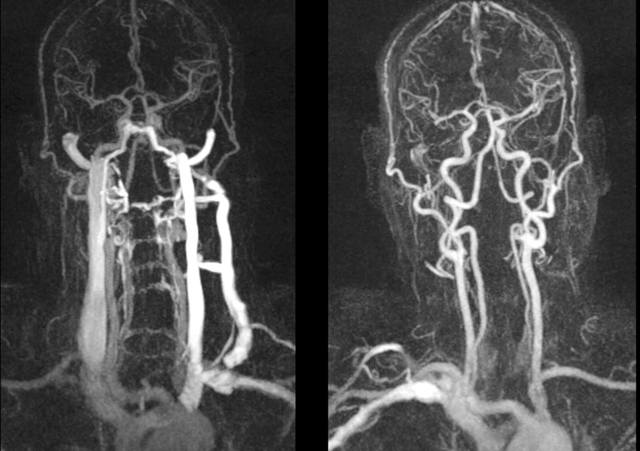 Ангиография сосудов (артерий) нижних конечностей, шеи, головного мозга