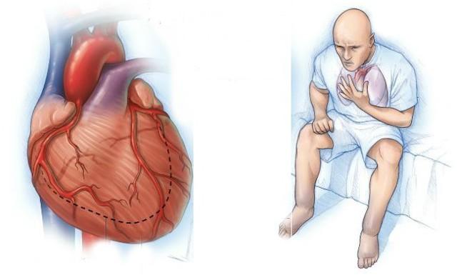 Декомпенсированная сердечная недостаточность, стадии декомпенсации