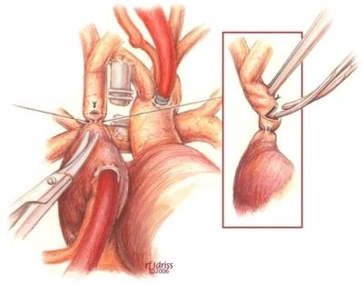 Анастомозит после резекции желудка: лечение, симптомы и причины развития