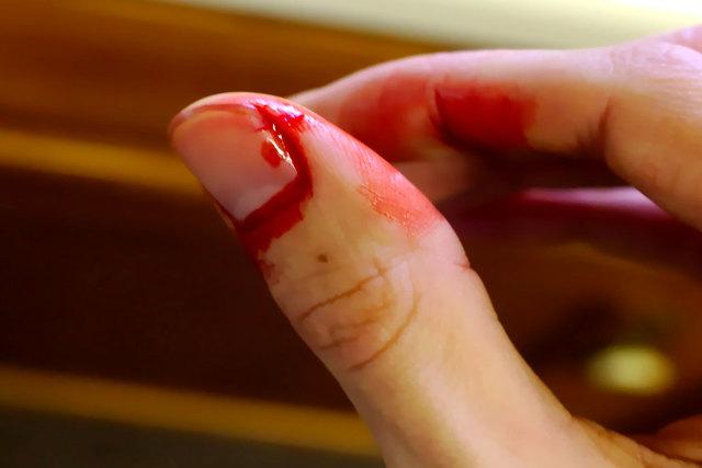 Чем и как остановить кровь из вены, раны, губы или пальца