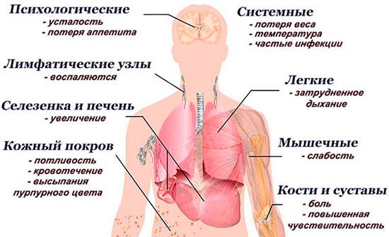 Рак крови: симптомы у взрослых мужчин, признаки у женщин и детей