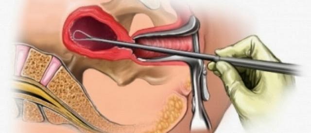 Толстый эндометрий