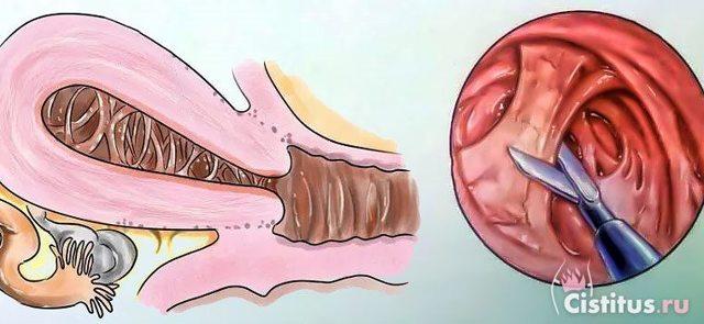 Что такое синехии в полости матки