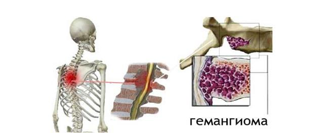Венозная гемангиома сосудов (сосудистая): симптомы и лечение