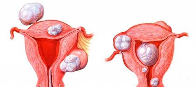 Причины отсутствия роста эндометрия