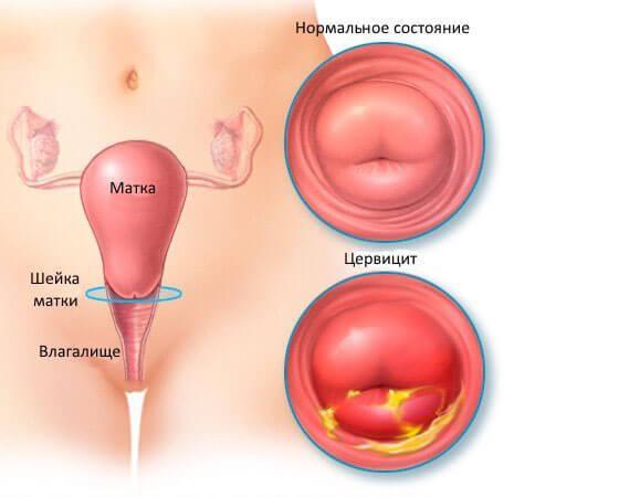 Что такое хронический цервикоз