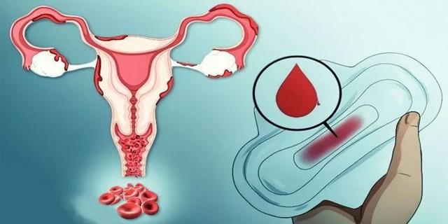 Причины маточного кровотечения