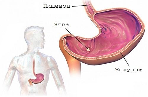 Как лечить язву желудка в домашних условиях: диета, препараты, фитотерапия