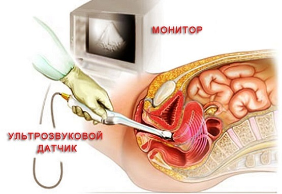 Подготовка к процедуре узи матки
