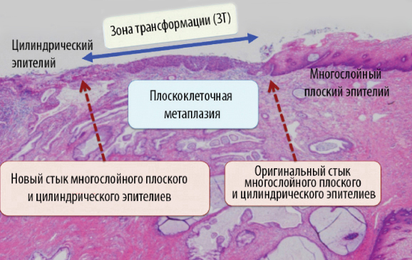 Симптомы дисплазии шейки матки