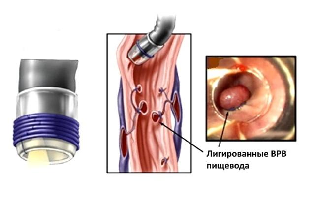 Лигирование вен пищевода: что это, как проводится процедура и при каких состояниях она показана